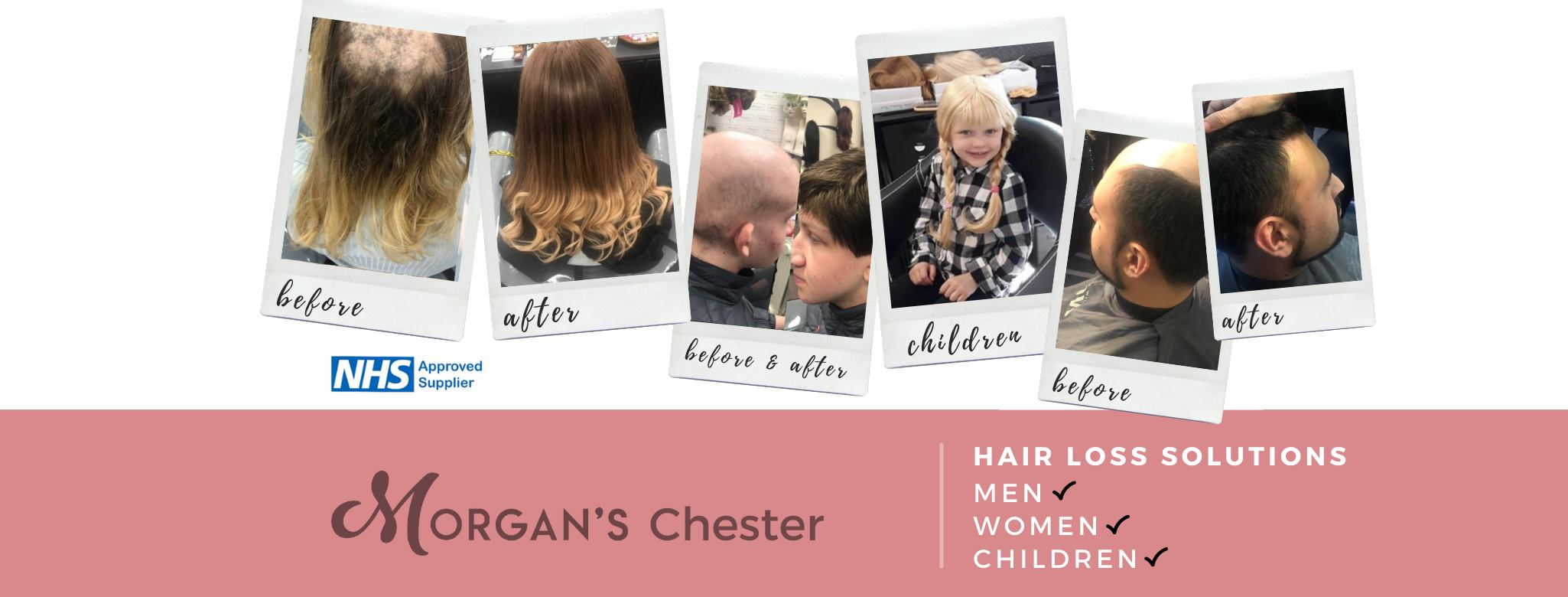 Morgan's Wigs & Hair Loss Specialists, Chester